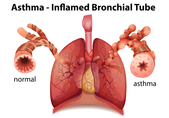 Asthma Airway showing Inflammation